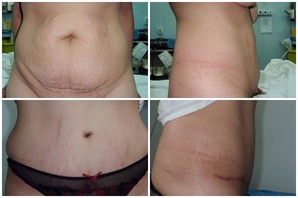 abdominoplastia-inainte-si-dupa