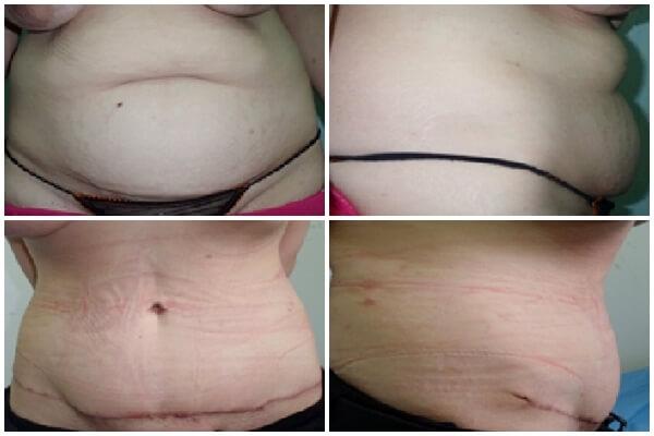 abdominoplastia-poze