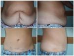 abdominoplastia-poze-inainte-si-dupa_operatie