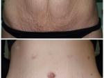 abdominoplastia-pret