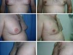 Ginecomastie, pret ginecomastie, operatie ginecomastie, ginecomastie poze