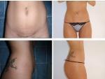 Lipoaspiratie abdomen, poze lipoaspiratie abdomen