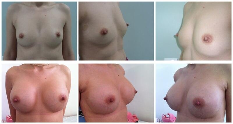 inainte-si-dupa-operatie-estetica-de-implant-cu-silicoane