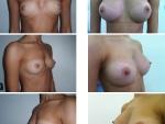 implant cu silicon, implant mamar, poze implant cu silicon