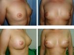 Augumentare mamara, pret augumentare mamara, pret implant cu silicon