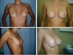 Augumentare mamara, poze augumentare mamara, augumentare mamara poze
