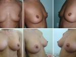 Implant mamar, implant mamar cu silicon, pret silicoane, pret implant silicon