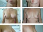 implant cu mastopexie