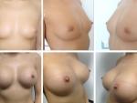 mamoplastie
