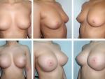 mamoplastie2