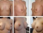 mamoplastie4