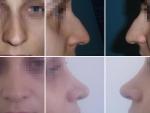 Operatie de rinoplastie, rinoplastie, poze rinoplastie, pret rinoplastie