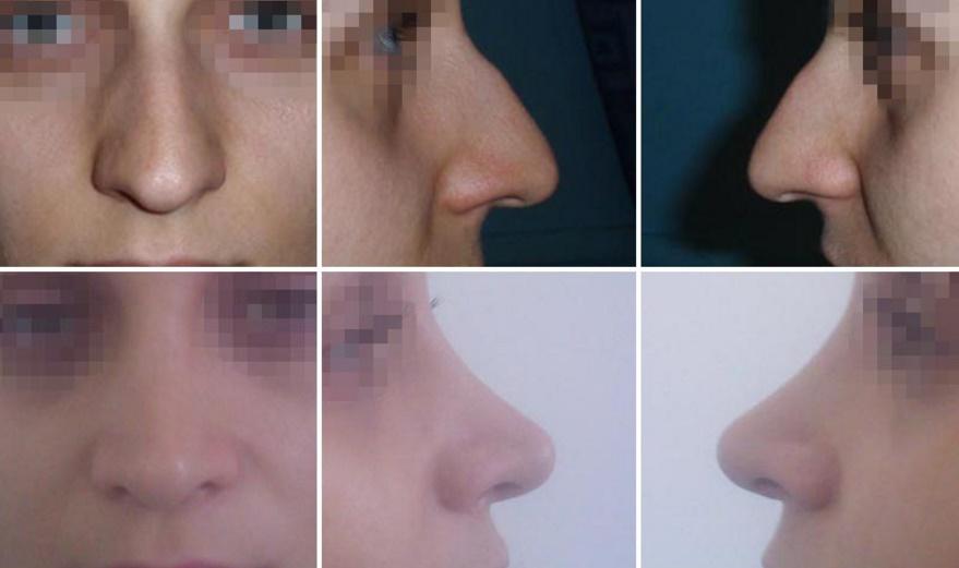 operatie de infrumusetare a nasului