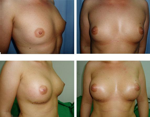 implant mamar cu silicon