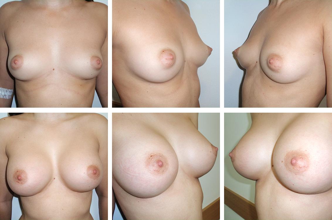mamoplastie cu silicoane