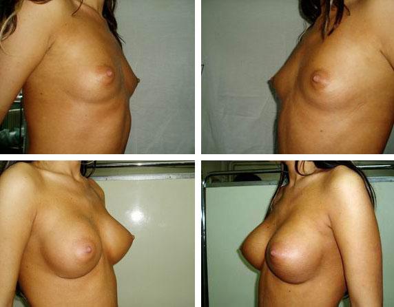 operatie augmentare mamara