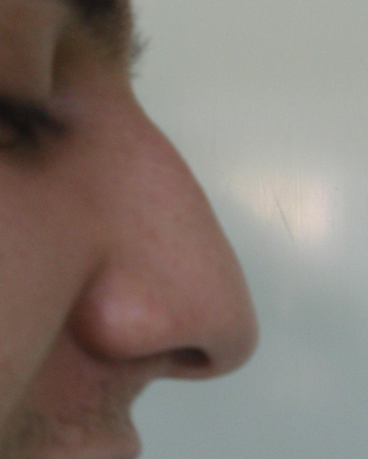 nasul penisului